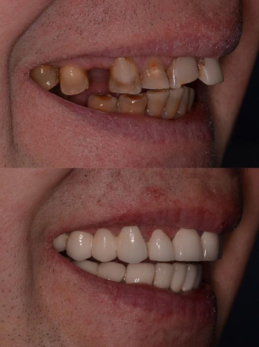 сделать зубы виниры цена