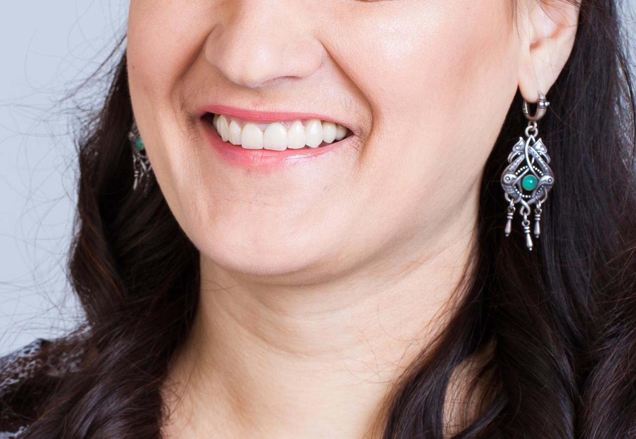 керамические виниры стоимость одного зуба